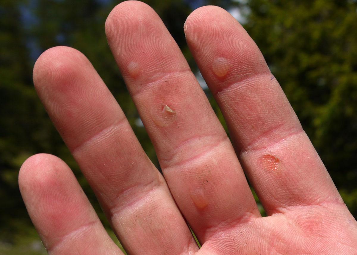 Klettersteig Handschuhe : Klettersteig ausrüstung das brauchst du wirklich we go wild